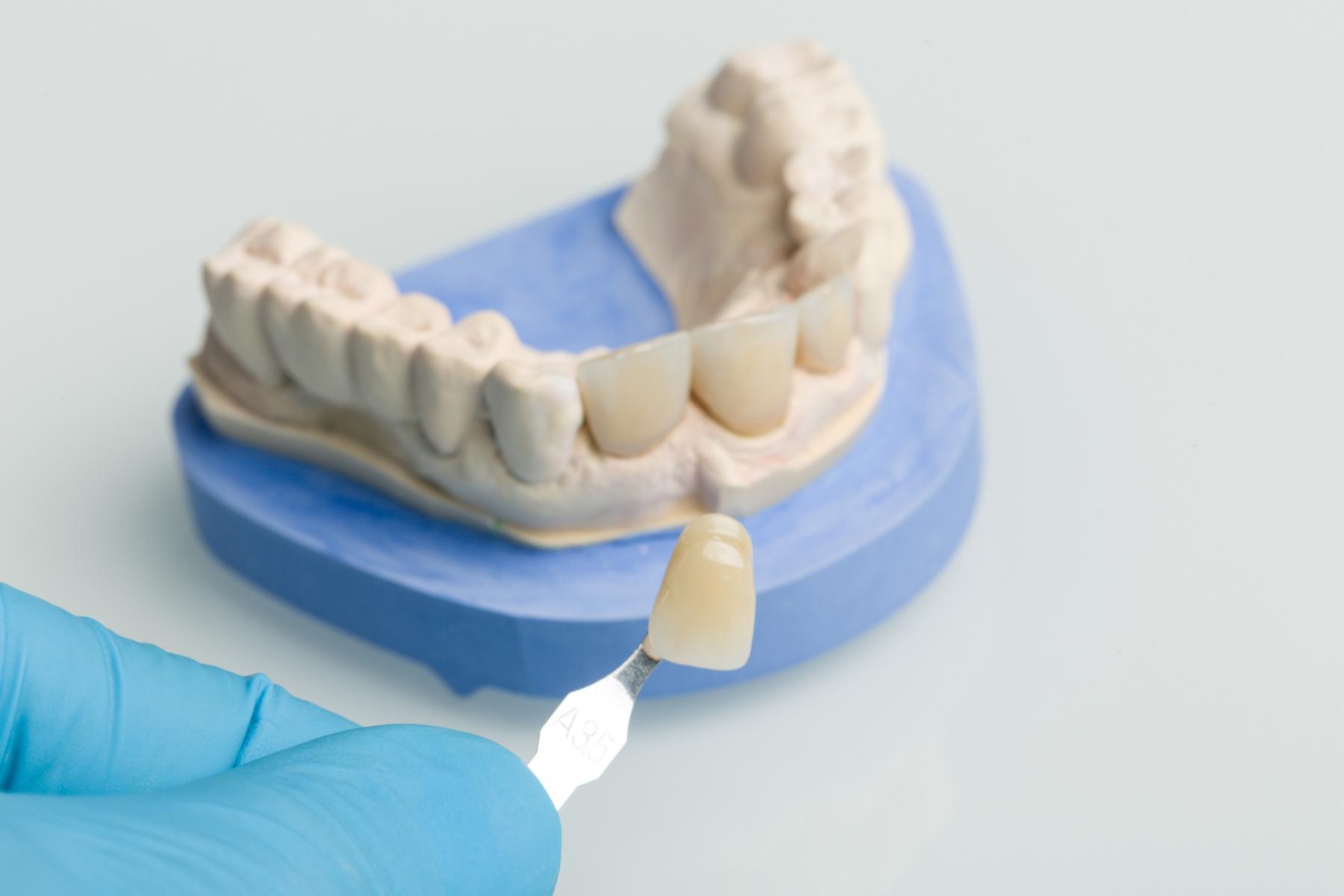 Foto Zahnimplantat, Zahnersatz, Dentallabor Praxis Dr. Boettcher in Hameln